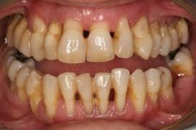 Hãy chăm sóc răng miệng kĩ càng để phòng bệnh nha chu