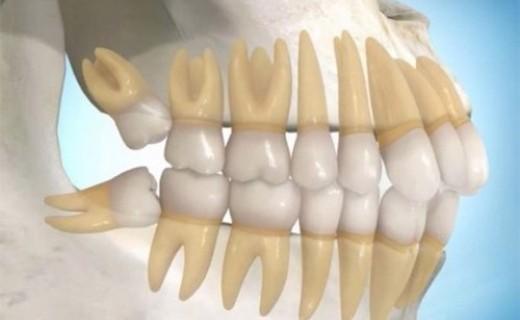 Nhổ răng khôn bao lâu thì lành hẳn?